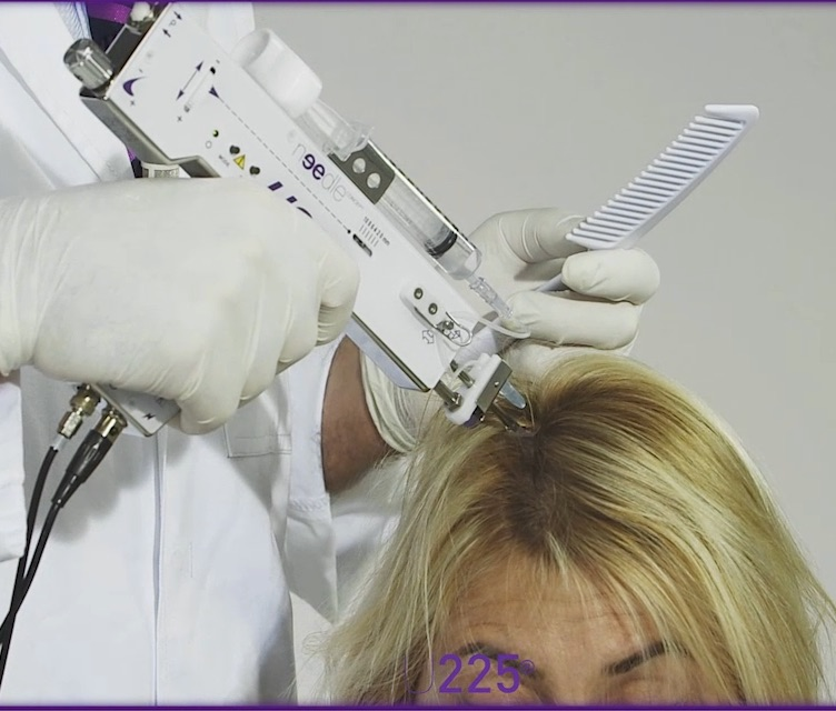 Consider Mesotherapy or PRP to revive and restore healthy, thick and shiny hair