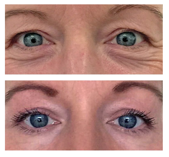 PERFECT EYEBROWS FOR A PERFECT EYE LIFT!