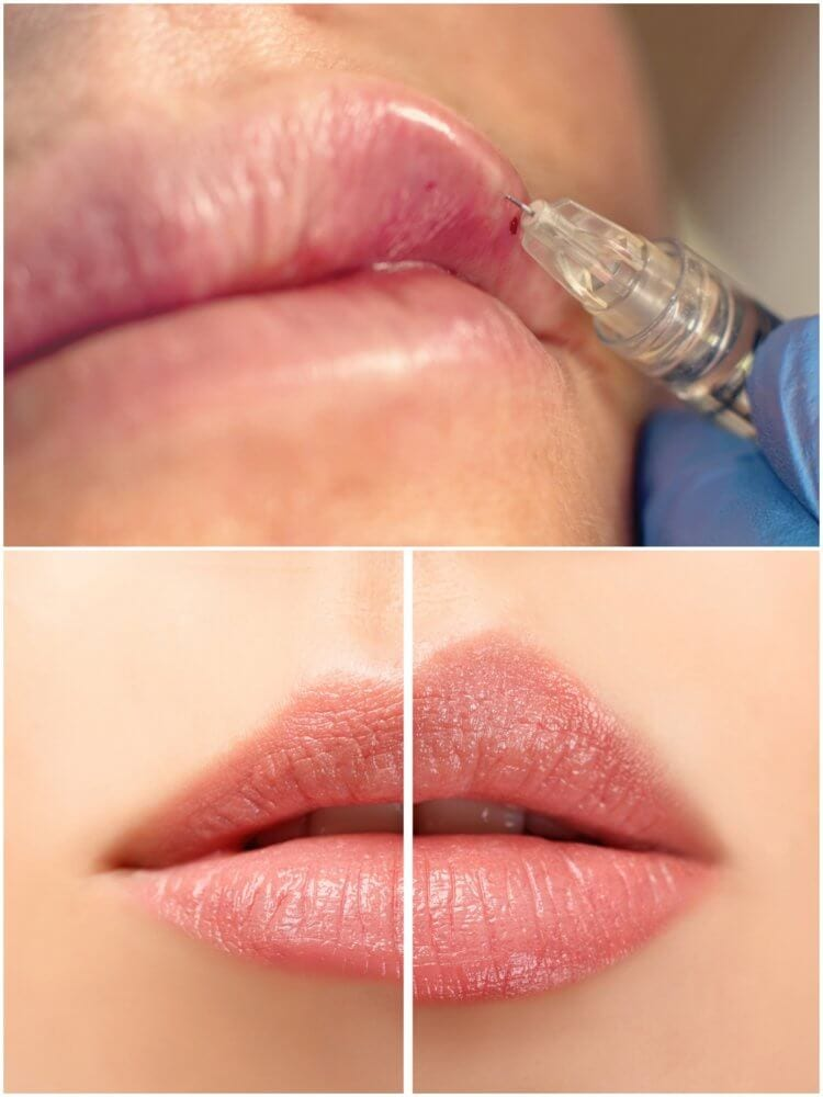 LIPS MYOMODULATION for natural and attractive Lips | TheLondonFacialCare | Dr Fern